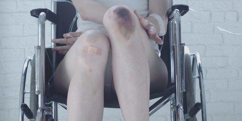 Картинка с тегом «bruise, pale, and hospital»