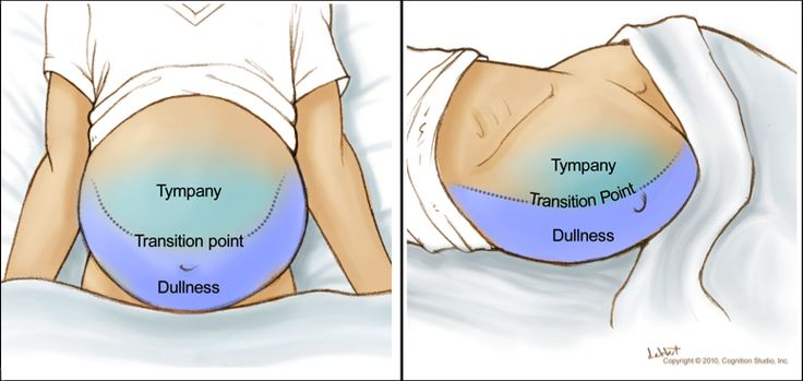 To perform the shifting dullness test, place the patient in the supine position, percuss the entire abdominal region, and mark the dullness-tympany transition point (left figure). Then place the patient in the right lateral decubitus position, wait 30 to 60 seconds, repeat the percussion, and again mark the dullness-tympany transition point (right figure).  A positive shifting dullness test is indicated by a shifting of the transition point.