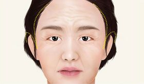 incision areas for face lifting