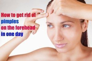 How To Get Rid Of Pimples On Forehead In One Day   Pimple