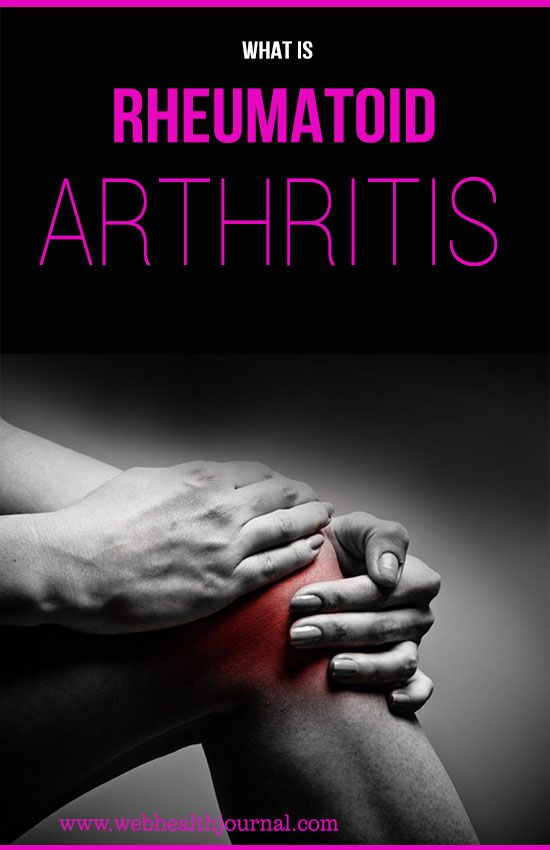 what is rheumatoid arthritis, RA factor, rheumatoid nodules :