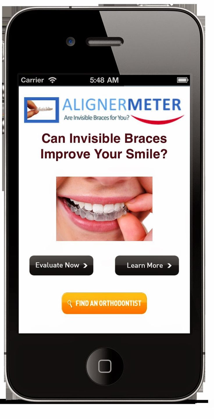 AlignerMeter - The Invisible Braces App #ProductReview