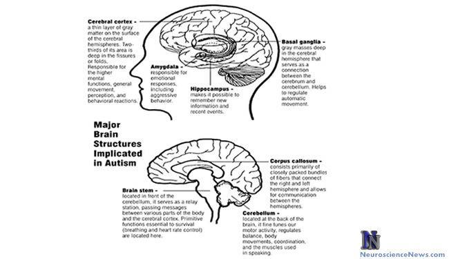 Autism Brain Structures- Cerebral cortex, Basal ganglia, Amygdala, Hippocampus, Corpus callosum, Cerebellum, Brain stem.