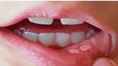Les aphtes sont des plaies douloureuses et peu profondes dans la bouche. Ils sont généralement rouges ou peuvent parfois avoir une couche blanche sur eux. Vous pouvez en avoirà l'intérieur de vos lèvres, l'intérieur de vos joues, la base de vos gencives ou sous votre langue. Les aphtes sont différents des boutons de fièvre, qui …
