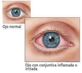 ojo normal vs ojo inflamado