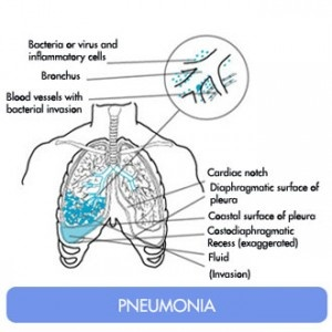 Symptoms of Pneumonia You can prevent this