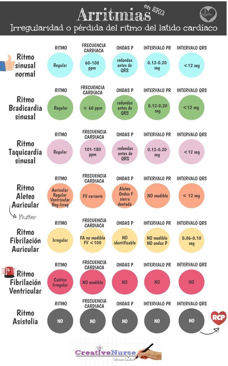 Arritmias en EKG en www.creativenurse.jimdo.com                                                                                                                                                                                 Más