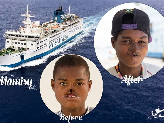 9 best Mercy Ships images on Pinterest Being a nurse, Nurses and