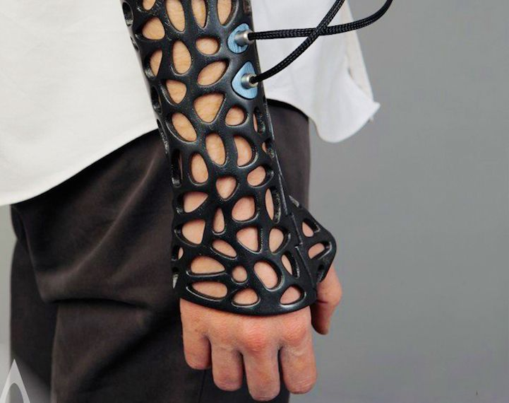 Turkish industrial designer Deniz Karasahin has come up with a 3D-printed cast concept that can increase the heal rate up to 80 percen