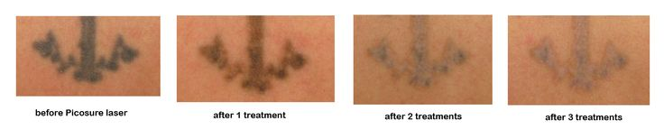 before / after tattoo removal with Picosure laser treatment