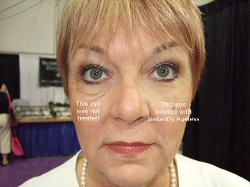 Incredible results before your very own eyes!  Watch the transformation take place as Instantly Ageless by Jeunesse makes you look 10 years younger in less than 2 minutes!