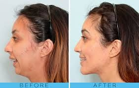 Image result for orthognathic surgery overbite