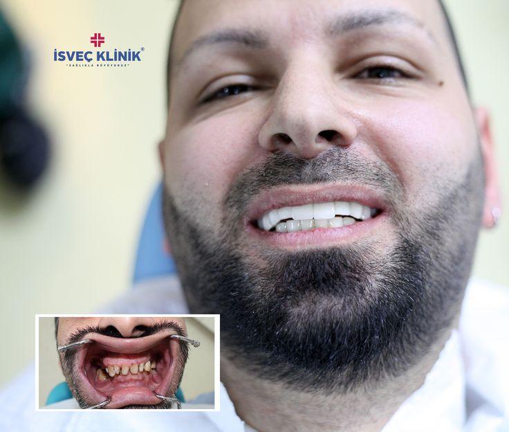 2 resim arasındaki 3 Farkı Bulun #diş #implant #estetik #isveçklinik #zirkonyum #gülümseme #tooth