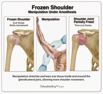 Treatments for Frozen Shoulder: Frozen Shoulder debate - joint manipulation vs. standard treatments. #frozenshouldertreatment