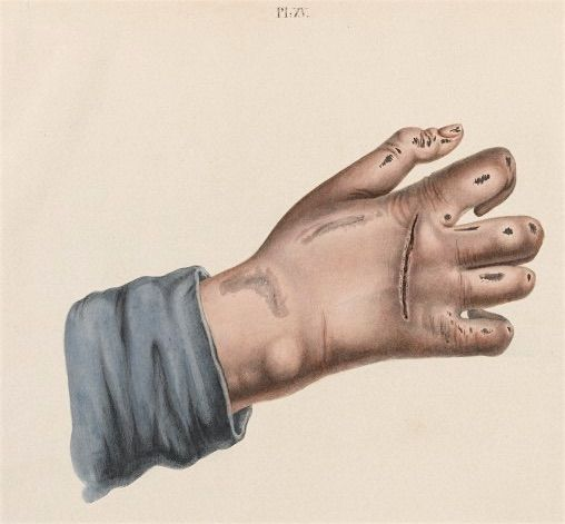 Damage to hands and feet caused by leprosy. source: wellcome
