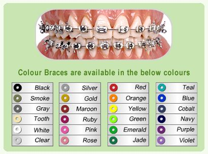 Hopefully some these colors are my choices at my orthodontist when I am getting my braces in the next few months!