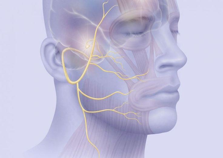 Περιφερική παράλυση προσωπικού νεύρου