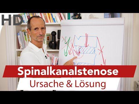 Spinalkanalstenose // Ursache und Lösung bei Spinalkanalstenose