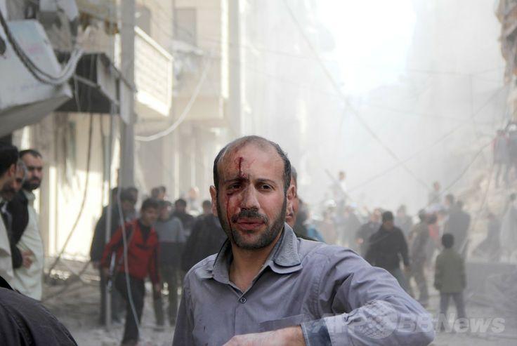 シリア北部アレッポ(Aleppo)近郊で、たる爆弾によるとみられる爆撃で負傷した男性(2014年3月5日撮影)。(c)AFP/MOHAMMED AL-KHATIEB ▼6Mar2014AFP|シリア、「包囲と飢餓」が軍事作戦の一部に 国連報告 http://www.afpbb.com/articles/-/3009871
