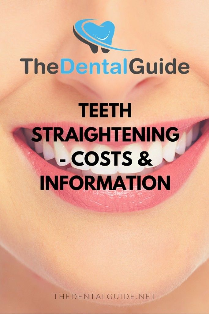 Teeth Straightening - Costs & Information - The Dental Guide