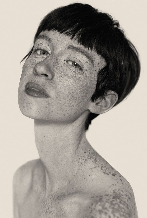 black/white photographs of women with freckles, by Reto Caduff.