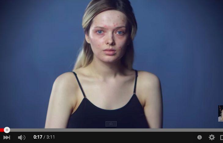Em Ford, la beauty blogger affetta da acne che si è mostrata senza trucco (screen-shot dal video «You look disgusting»)