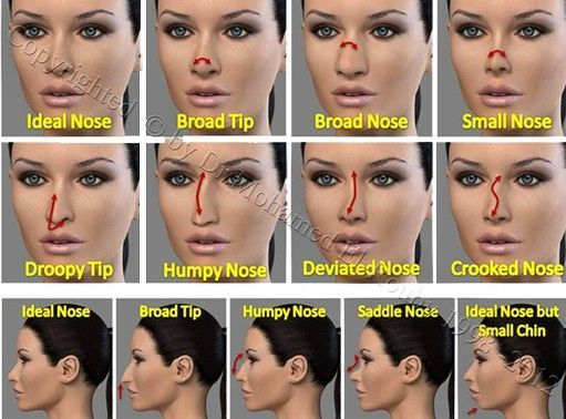 123 best images about Rhinoplasty on Pinterest | Holly ...
