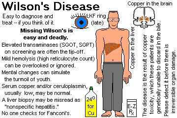 wilson disease - Google Search