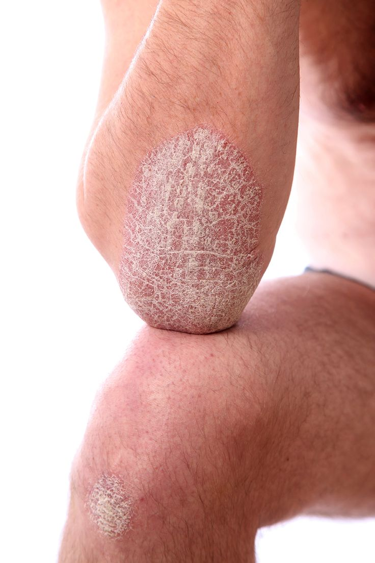 Psoriasis Treatments: Let's take a detailed look at the different types of psoriasis and its treatments.