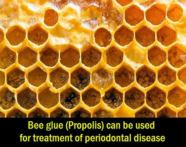 Bee glue (Propolis) can be used for treatment of periodontal disease | OVI Dental