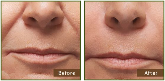 Dermal Fillers (Juvederm): Cheek (nasolabial) Folds