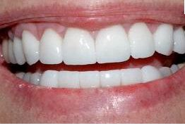 never buy white strips again!: dip q-tip in hydrogen peroxide (the key ingredient in whitestrips) and apply to surface of teeth for 30 sec before brushing teeth) once a day for a few days. Teeth will look whiter in 2 days. NOTE: put peroxide on teeth before tanning bed, for those of you that tan! WHITER TEETH FASTER!