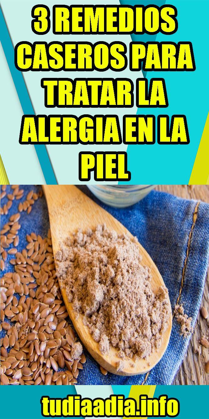 alergias en la piel en los ninos remedios caseros