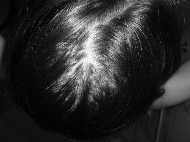 Alopecia Hair Loss Black Women * Click image to review more details.
