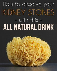 Learn how to dissolve your kidney stones with this all natural drink.