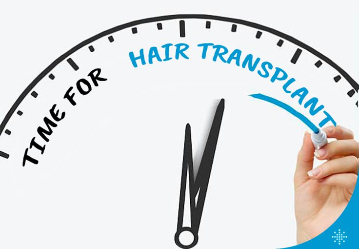 Hair transplantation is undoubtedly the permanent surgical solution, because the hair collected from donor site (area on back of your head between the ears) are resistant to DHT hormone and chance of weakening and loss of hair is minimal to none.  /// For more information  WhatsApp: 0090543 470 47 09 ///  #hairtransplant #haartransplantation#fuehairtransplant #haarverlängerung #hairtransplantation #greffedecheveux #trasplantedepelo #haartransplantatie #trasplantecapilar #trapiantodicapelli