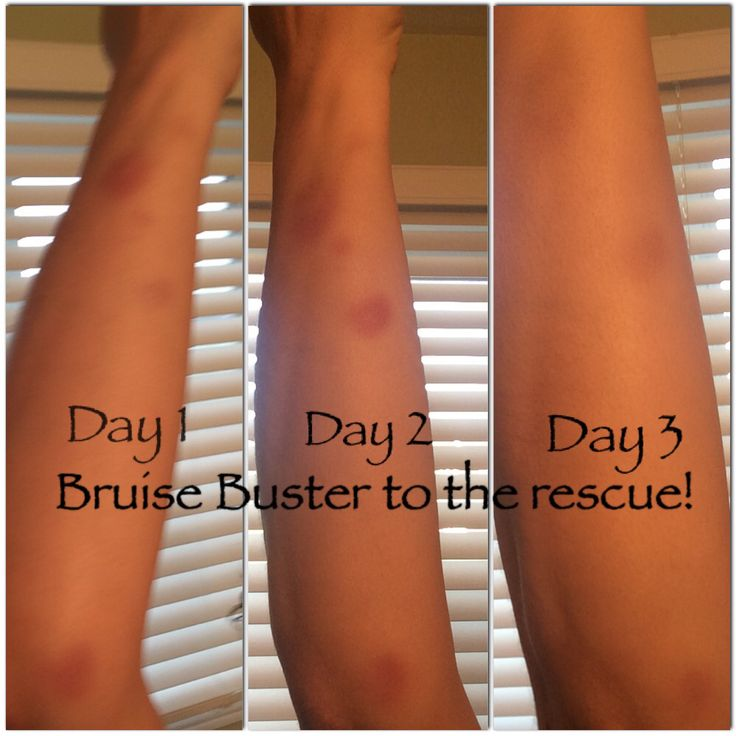 Another example of #BruiseBuster at its finest! #allNatural #local613 Ottawa Farmers' Mkt Cumberland Market