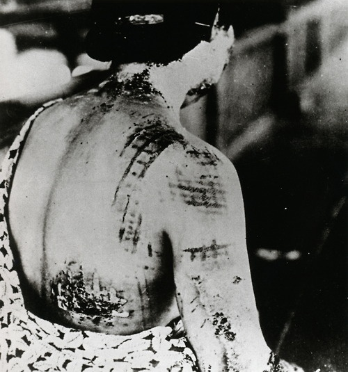 A Japanese woman awaits treatment, her back scarred by the patten of the dress she was wearing when the world's first atomic bomb used in warfare fell on Hiroshima on August 6, 1945. Since white colors repelled the bomb's heat and dark colors absorbed it, fabric designs were burned into the skin.
