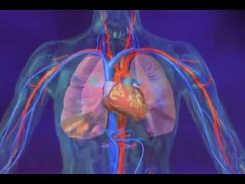 What Is Pulmonary Hypertension? A great video
