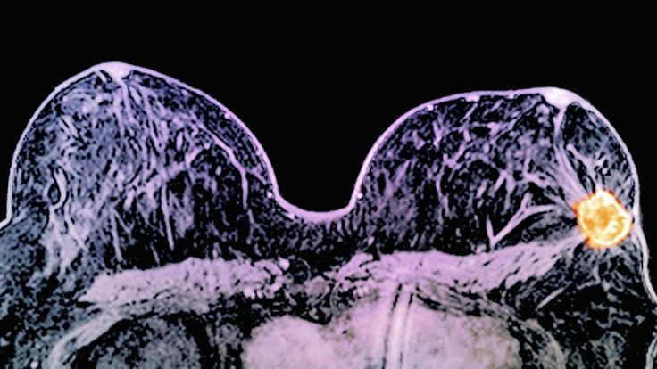 March 10, 2016 - A pair of drugs can dramatically shrink some breast cancers in just 11 days, UK doctors have shown.
