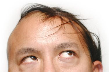 Inside the Mind of a Man With a Comb-Over | Cracked.com
