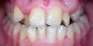 Ortodonti Tedavi Öncesi, Bozuk Dişler