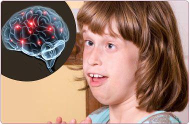 Rett's Syndrome: A Case Study : Journal of Neuroscience ...