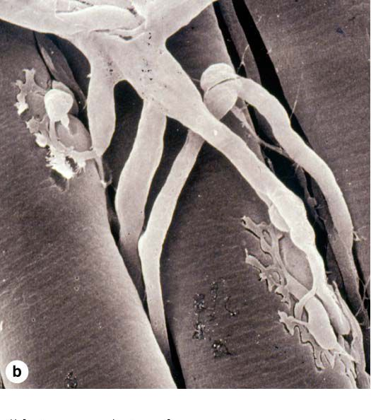 Neuromuscular junction. The nerve (in white) transmits its signal to the skeletal muscle (grey tubes) to generate contraction.