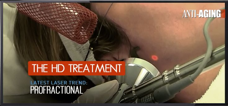 ProFractional laser treatment from TheSkiny.com