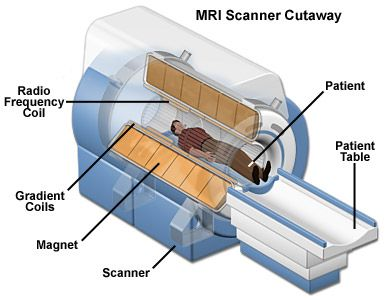 Magnetic resonance imaging or MRI is an imaging technique used primarily in medical diagnostics for representation of structure and function inside the body.