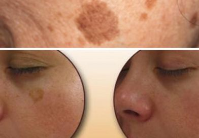 Try This Simple Trick to Get Rid of Brown Spots on Face & Skin
