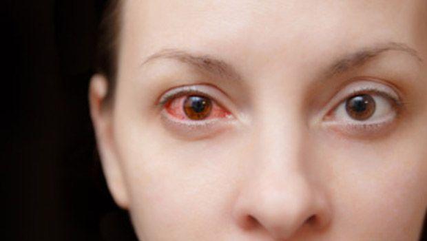 أعراض مرضية تدل على إصابتك بأكثر أمراض العيون خطورة Pink Eyes Pink Eye Drops Pink Eye Causes