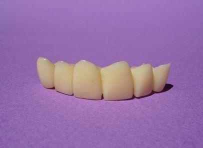 How to Price Dental Bridge Work