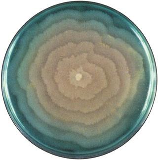 Proteus mirabilis swarming. It is motile, having peritrichous flagella.